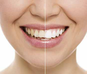 Turlock patients trust the teeth whitening process