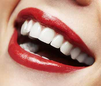 smiles around with porcelain veneers