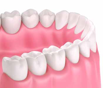 The biggest concern in non-biological dentistry is the use of silver amalgam fillings.