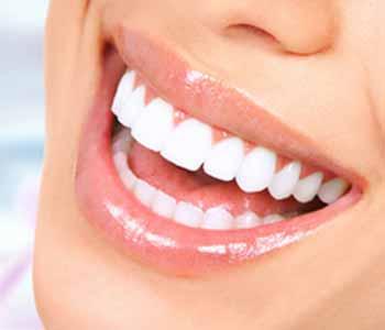 Image of a Myobrace uses of a Straight Teeth