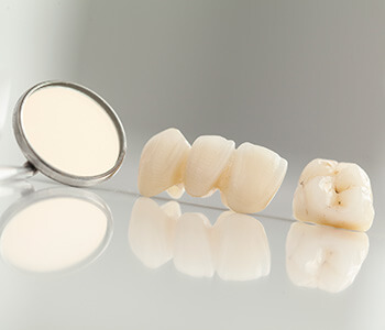 "Ramsin K. Davoud DDS Patients in Turlock ask, ""Why Are Zirconia Dental Implants Gaining Popularity?"