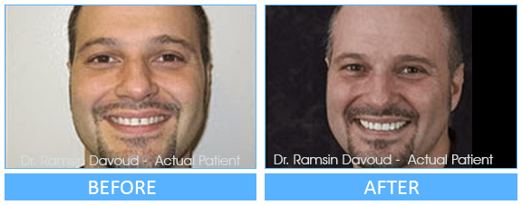 Cosmetic Dentistry Before after image-01