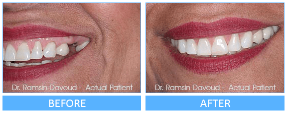 Implant Dentistry Before after image-01