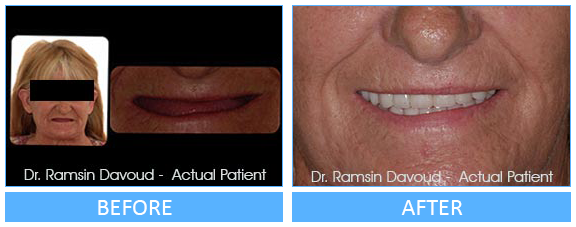 Smile Gallery Turlock - Implant Dentistry Before after image-02