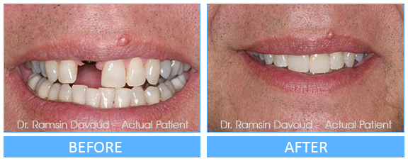 Smile Gallery Turlock - Implant Dentistry Before after image-03