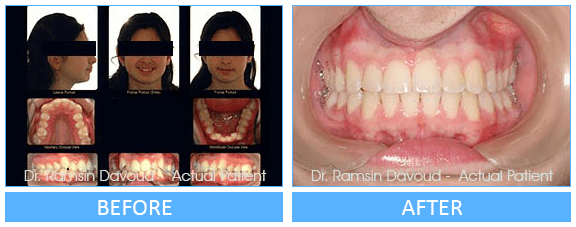 Orthopedic Orthodontics Before after image-01