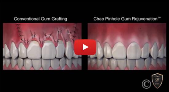 Chao Pinhole® Surgical Technique