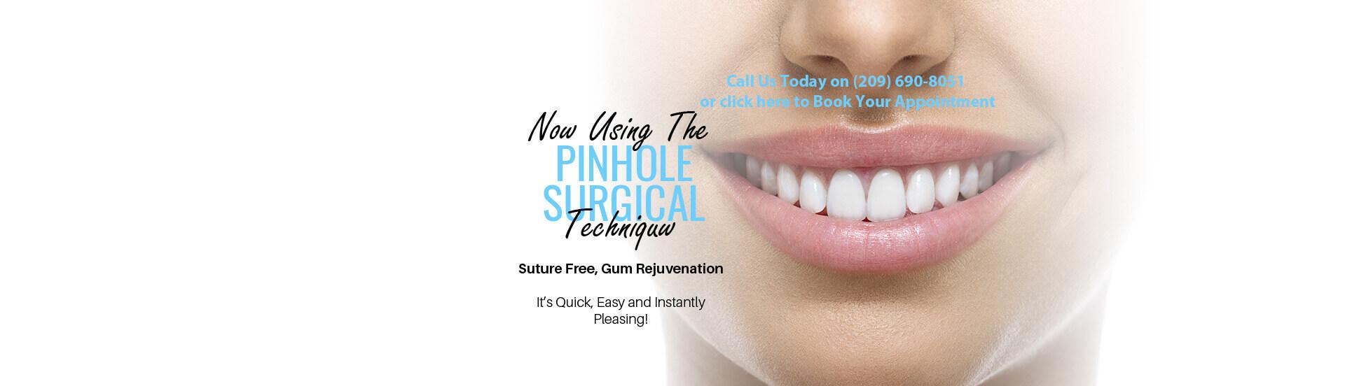 Dentist Turlock - Pinhole Surgical
